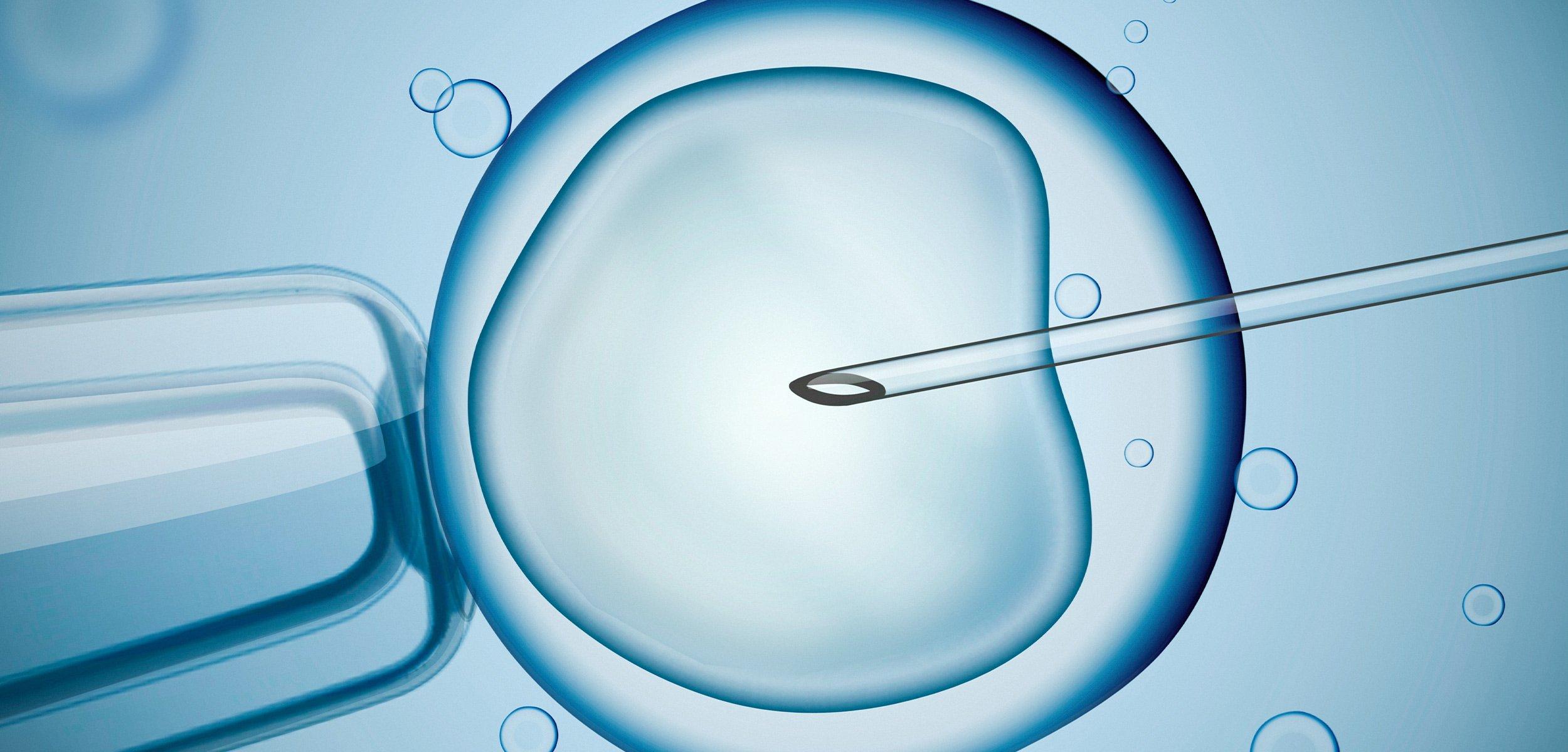 Tüp Bebek Tedavisi - In Vitro Fertilizasyon (IVF)